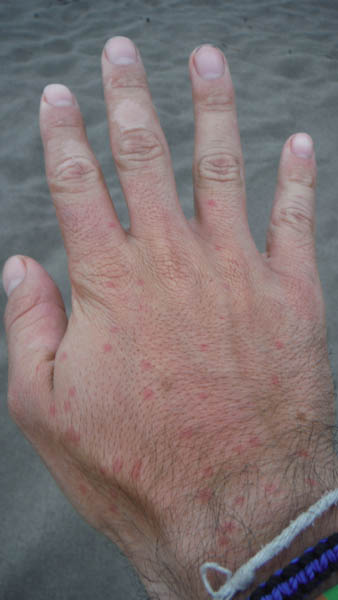 Mosquitos en Honduras